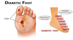 Dealing With Diabetes And Swelling Of Feet Almawi Limited The
