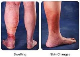 What Is Superficial Thrombophlebitis Almawi Limited The